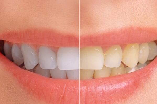7 maneras simples de como blanquear los dientes naturalmente en casa